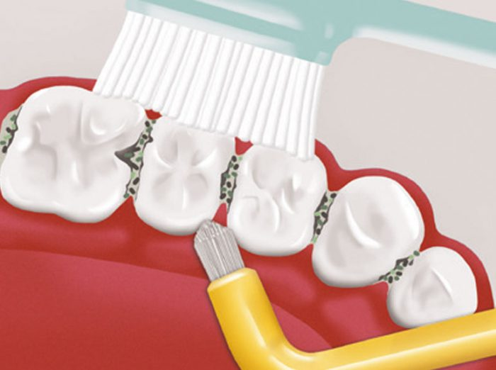 Oral Prevent Folder